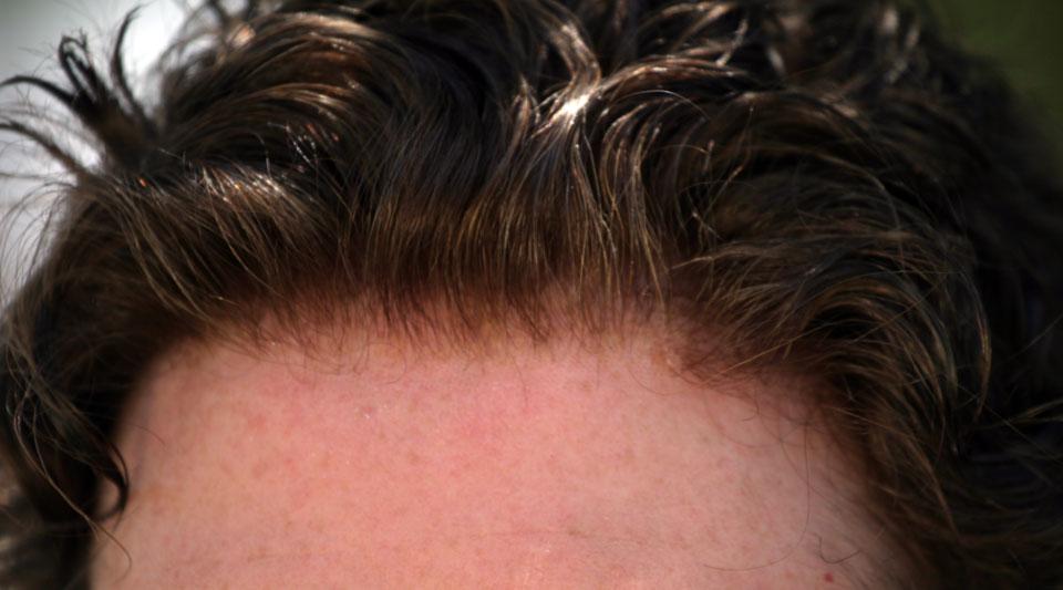 The New Quot Super Silk Quot Sa 231 Sistemleri Hairvision Da Hair