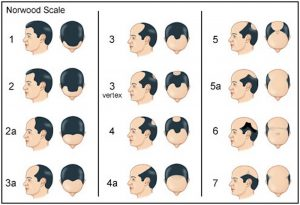 Norwood-Scale-for-hair-loss